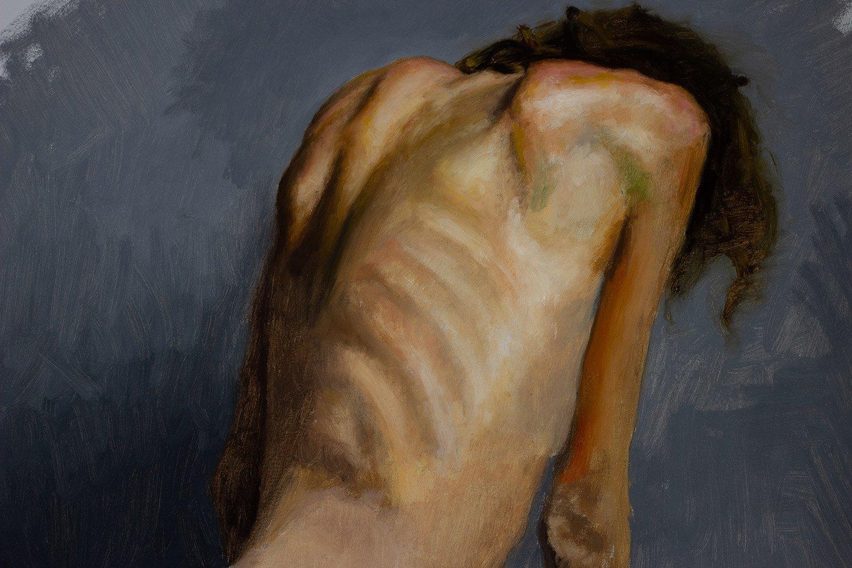 Fatigue: Skin Colors