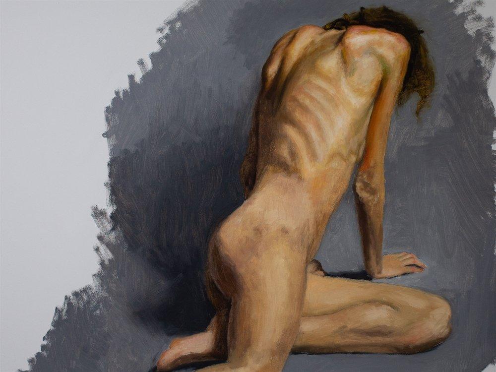 Fatigue: Anatomy Helps You See